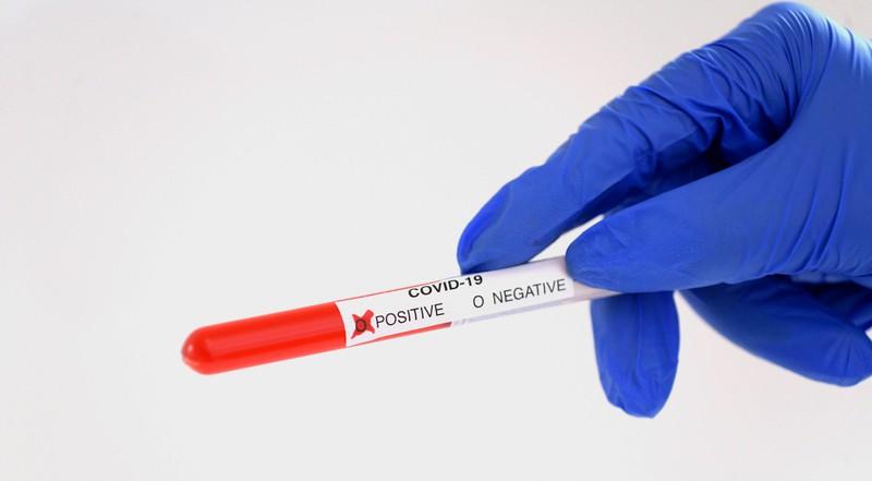 Menschen aus Regionen, die besonders viele Corona-Erkrankte zählen, müssen zum Reisen einen negativen Corona-Test vorlegen.