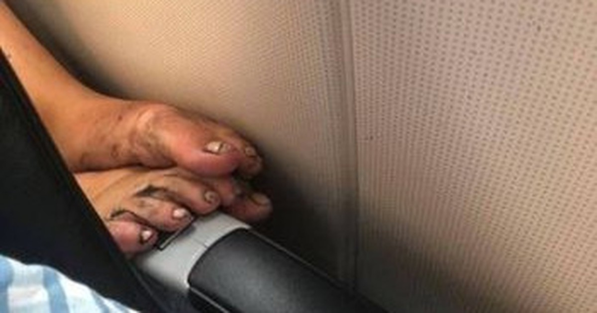 10 unappetitliche Passagiere im Flugzeug